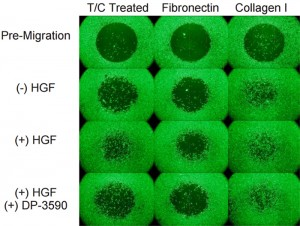 Impact of surface coating on cell migration